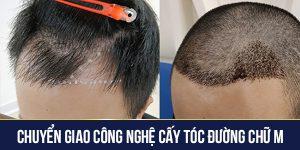 chuyển giao công nghệ cấy tóc đường chữ M