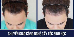 Chuyển giao công nghệ cấy tóc sinh học