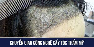 Chuyển giao công nghệ cấy tóc thẩm mỹ
