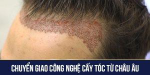 chuyển giao công nghệ cấy tóc từ Châu Âu