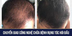 Chuyển giao công nghệ chữa bệnh rụng tóc hói đầu